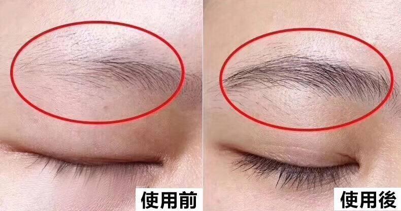 睫毛增長液